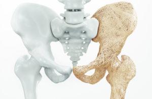 vitamin d bones