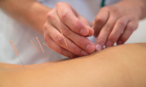korea acupuncture_jpg