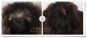 Лечение алопеции в Корее