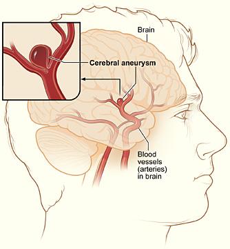 Лечение аневризмы головного мозга в Корее