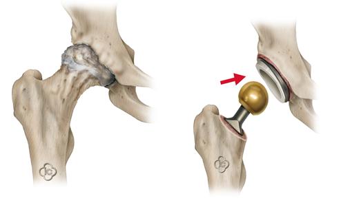 эндопротезирования тазобедренных суставов в корее