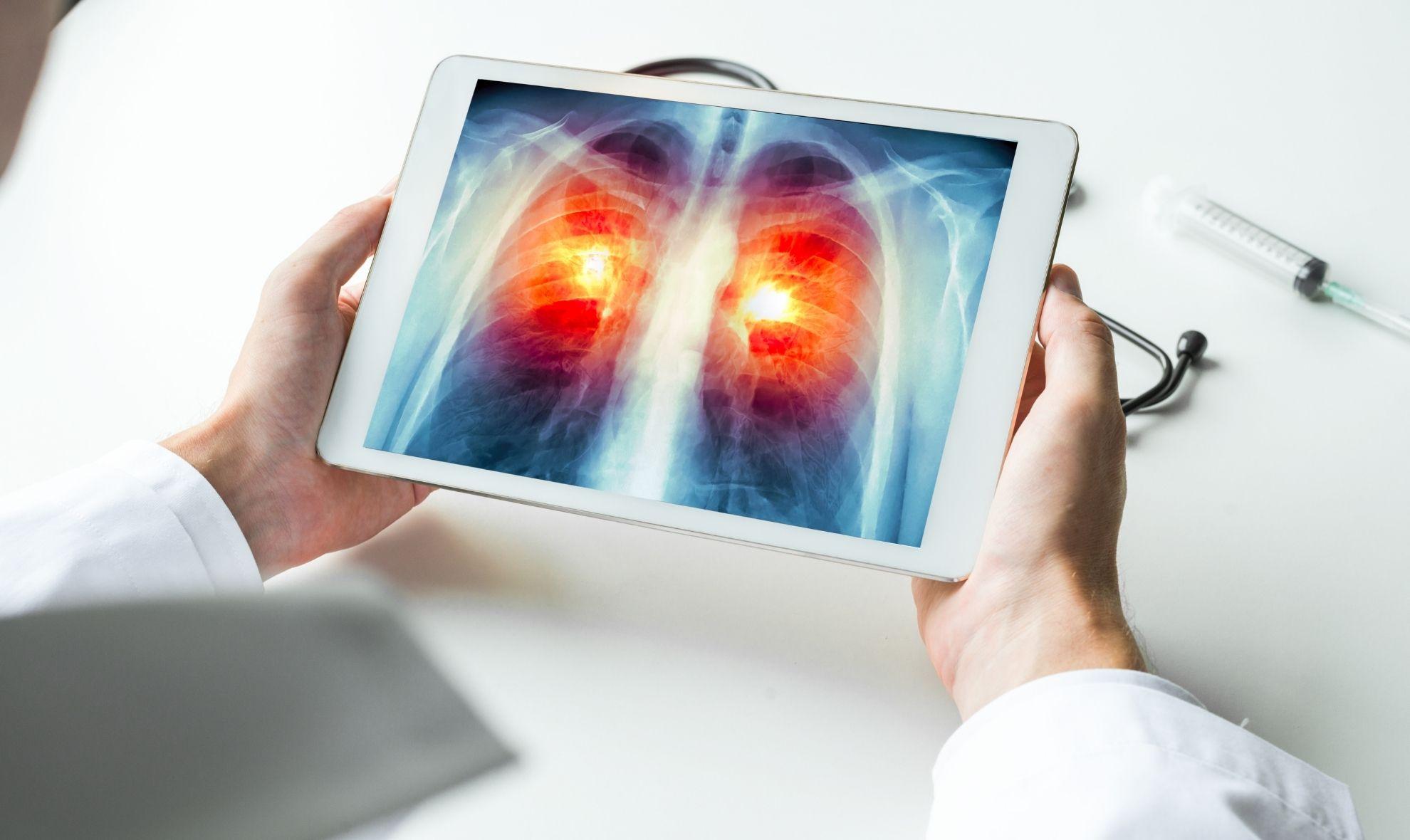 Южнокорейские ученые разрабатывают новое лекарство от рака легких